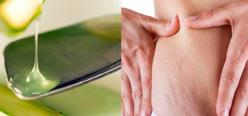 Combatir las estrías y la celulitis naturalmente