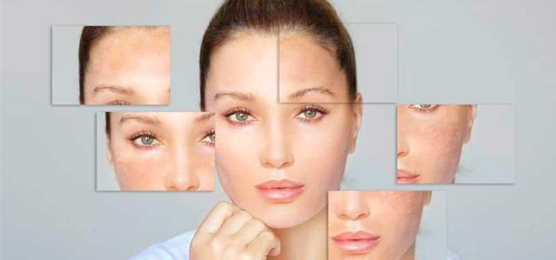 Como atenuar las marcas del envejecimiento